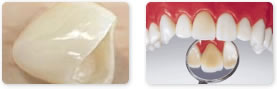 アルミナタイプとジルコニア(ブリッジにも使用可能)の2種類の材質があり、欠損歯数や色調に応じて使い分けます。