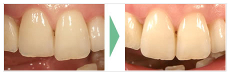 歯の形や、長さの違いが気になる場合