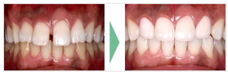 前歯のすき間が気になる場合
