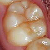 白い歯 ーハイブリッドレジンー