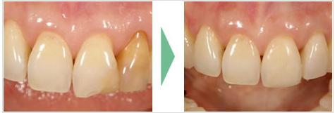 歯の修復を長期に維持・安定させるには