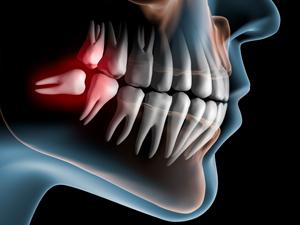 当院で行う無痛下での親知らずの抜歯