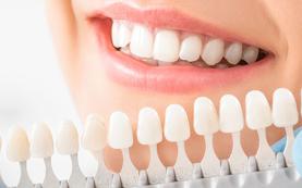 歯冠修復(歯の被せ・詰め物)